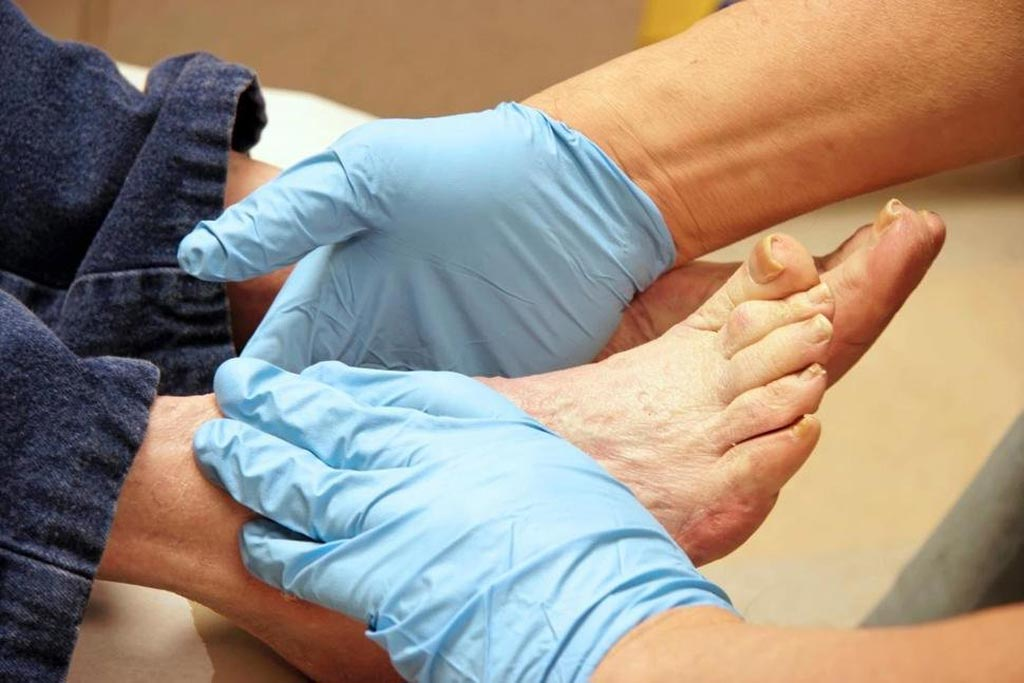 Image: A new study suggests providing more effective treatments for diabetic foot ulcers can prevent amputations (Photo courtesy of Getty Images).
