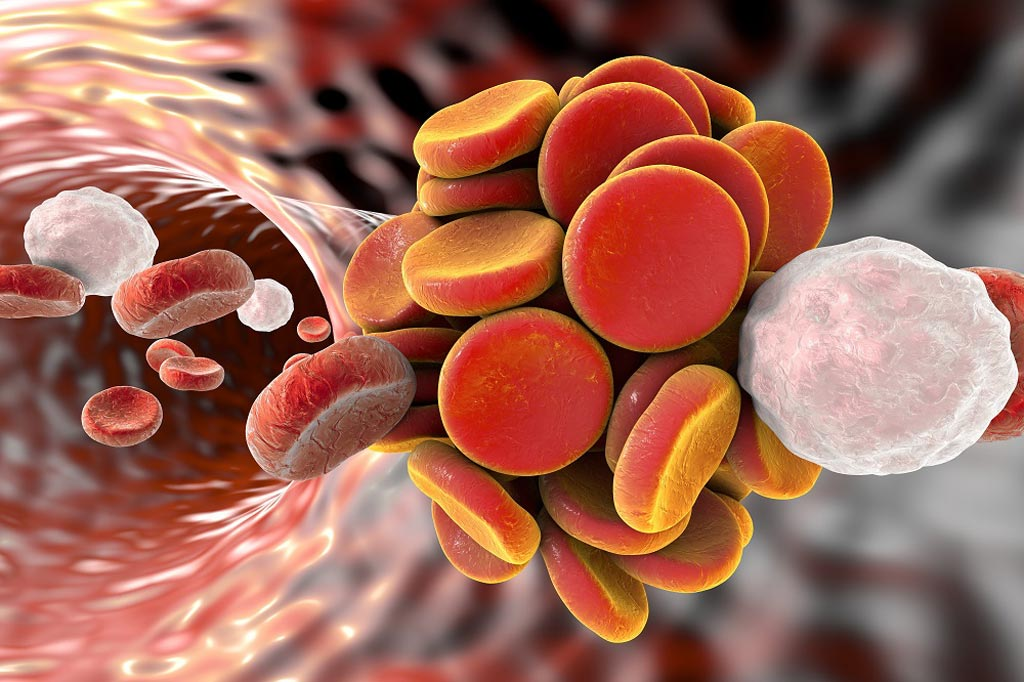 Image: A new study showed moderate-to-severe post-thrombotic syndrome occurred in 18% and 24% of patients in the pharmacomechanical thrombolysis and control groups, respectively (Photo courtesy of SPL).