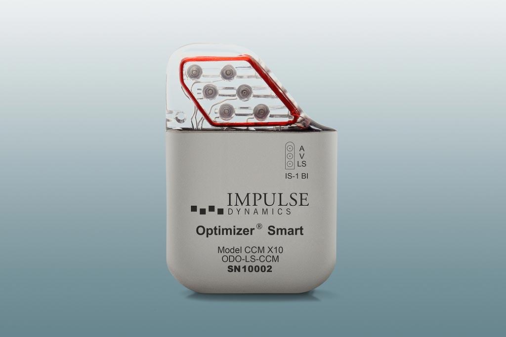 Image: The Impulse Dynamics Optimizer Smart implantable device (Photo courtesy of Impulse Dynamics).