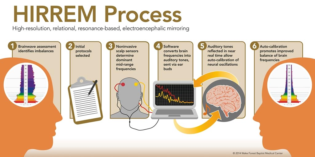 Image: The HIRREM brain autoregulation process (Photo courtesy of Wake Health).