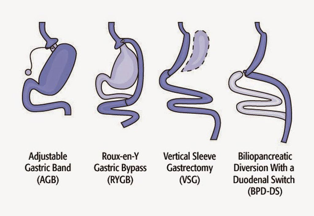 Image: The four common types of bariatric surgery (Photo courtesy of the NIH).