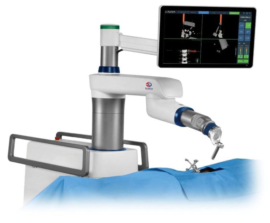 Image: The ExcelsiusGPS robotic navigation platform (Photo courtesy of Globus Medical).