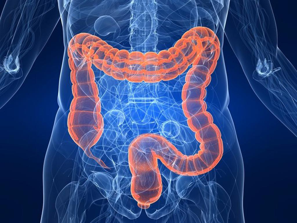 Image: A virtual reality colonoscopy could help clinicians detect abnormalities in the digestive system (Photo courtesy of iStock).
