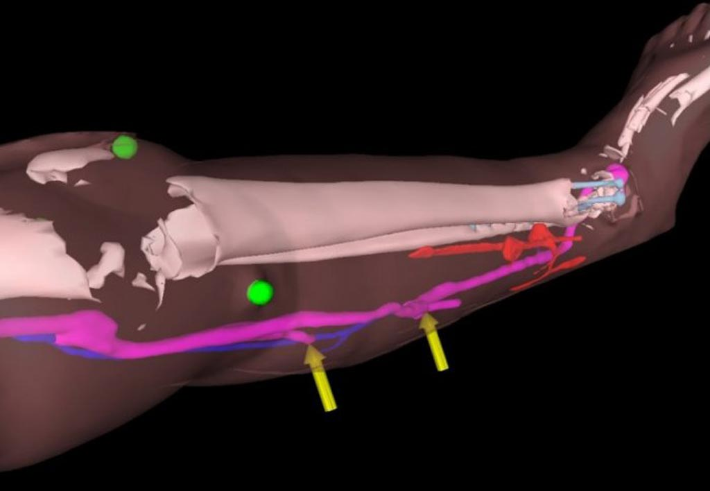 Image: The HoloLens headset helped surgeons perform reconstructive lower limb surgery on patients (Photo courtesy of Imperial College London).
