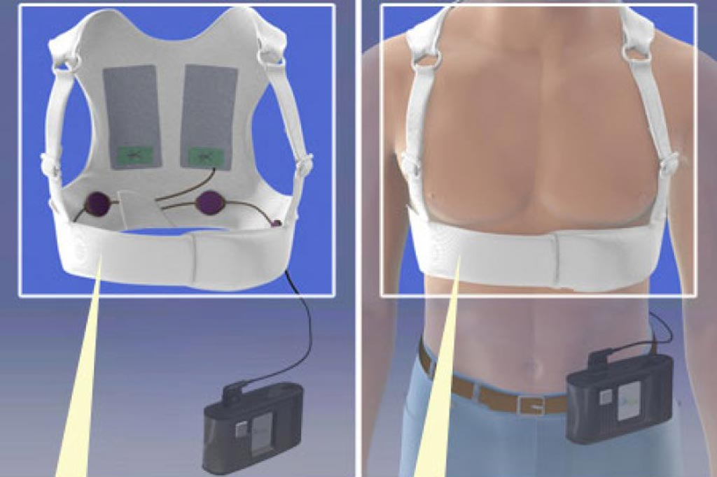 Image: The LifeVest WCD (Photo courtesy of Zoll Medical).