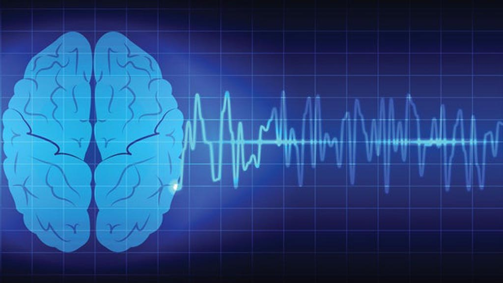 Image: A new study suggests measuring brain wave frequency can indicate pain predilection (Photo courtesy of 123rf).