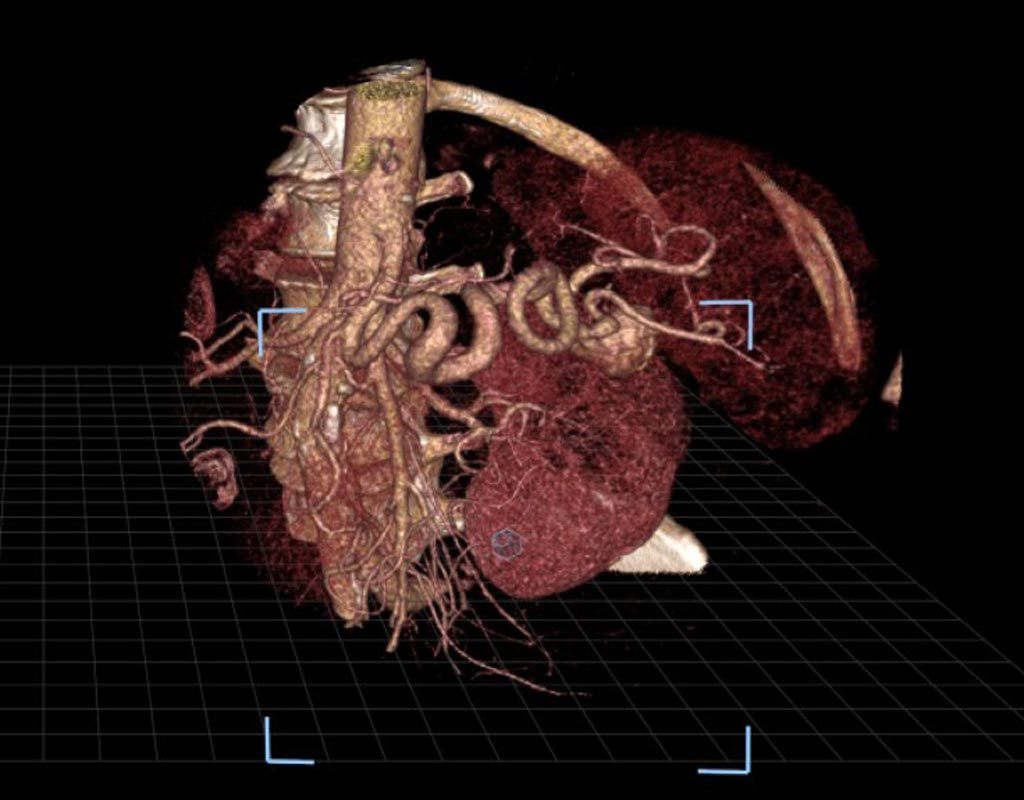 Image: An image of a splenic artery aneurysm as seen in virtual reality (Photo courtesy of SIR).