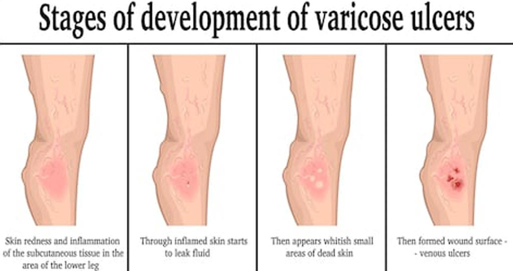 Image: A new study suggests rapid treatment of venous ulcers improves healing (Photo courtesy of Shutterstock).