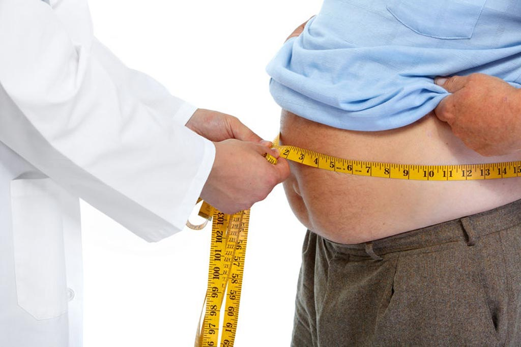 Image: A new study shows weight-reduction surgery can help recovery of diminshed libido (Photo courtesy of iStockPhoto).