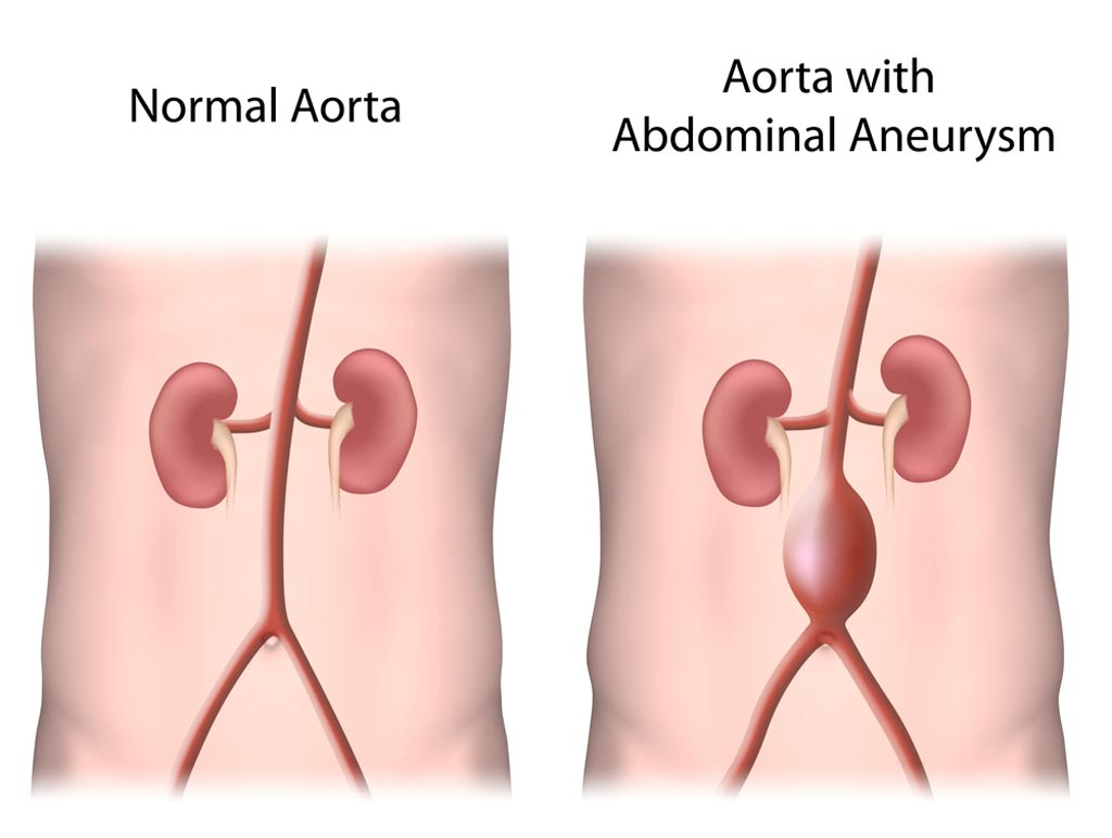 Image: The risk from AAA scanning is higher than that of the aneurysm itself (Photo courtesy of Shutterstock).