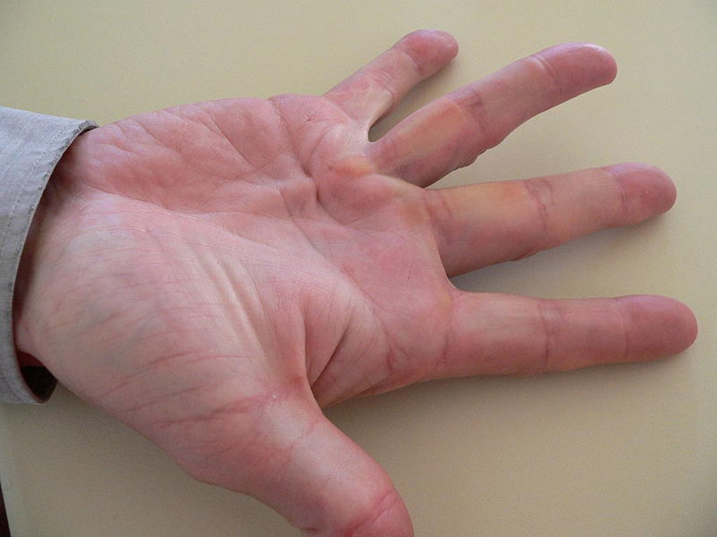 Image: An example of Dupuytren\'s contracture on the ring finger (Photo courtesy of Wikipedia).
