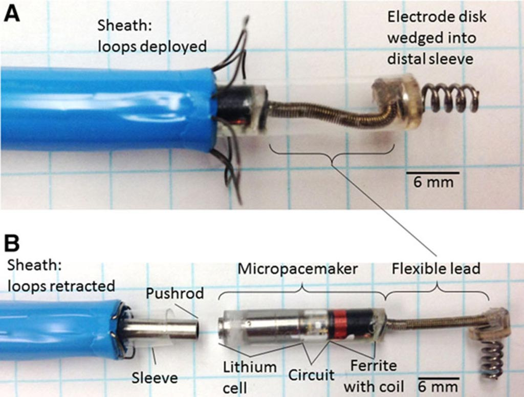 Image: An exploded view of the epicardial micropacemaker system (Photo courtesy of CHLA).