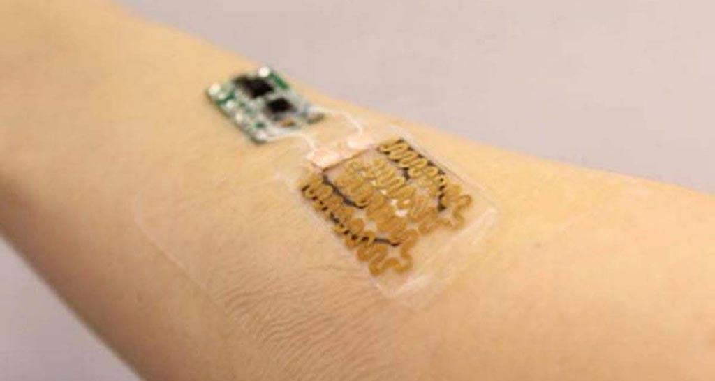 Image: A novel prototype dressing monitors wounds in real time (Photo courtesy of Sameer Sonkusale/ Tufts University).