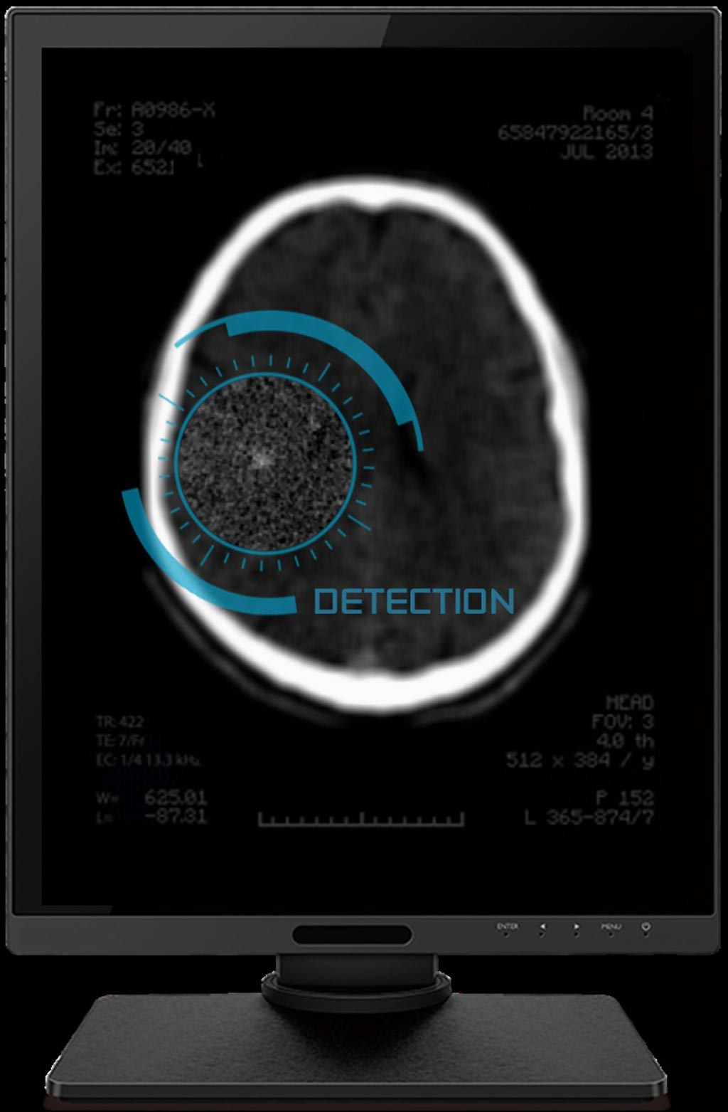 Image: The AI-based deep-learning solution is designed to assist workflow triage and improve response time (Photo courtesy of Aidoc).