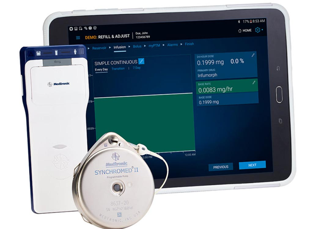 Image: The ISR system administers Remodulin for up to seven years (Photo courtesy of Medtronic).