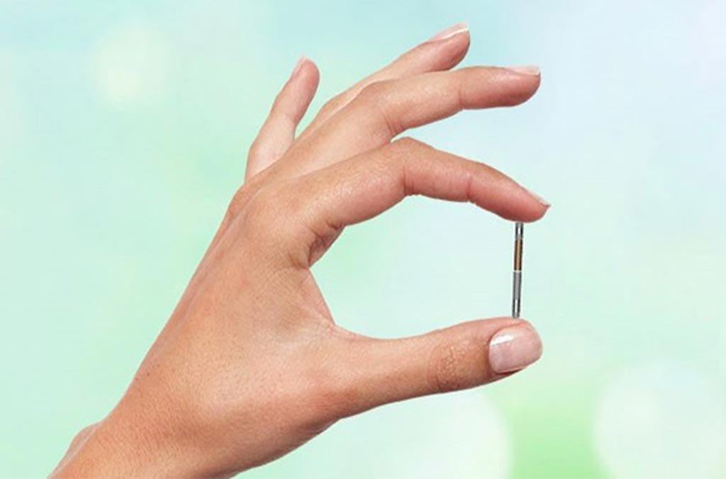Image: A small implantable neurostimulator helps control overactive bladders (Photo courtesy of BlueWind Medical).