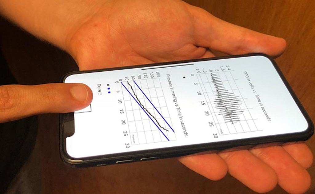 Image: An innovative oscillometric method can measure BP on a cell phone (Photo courtesy of MSU).