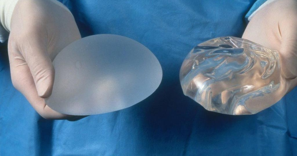 Image: Silicone and saline breast implants shown side by side (Photo courtesy of Science Photo Library).