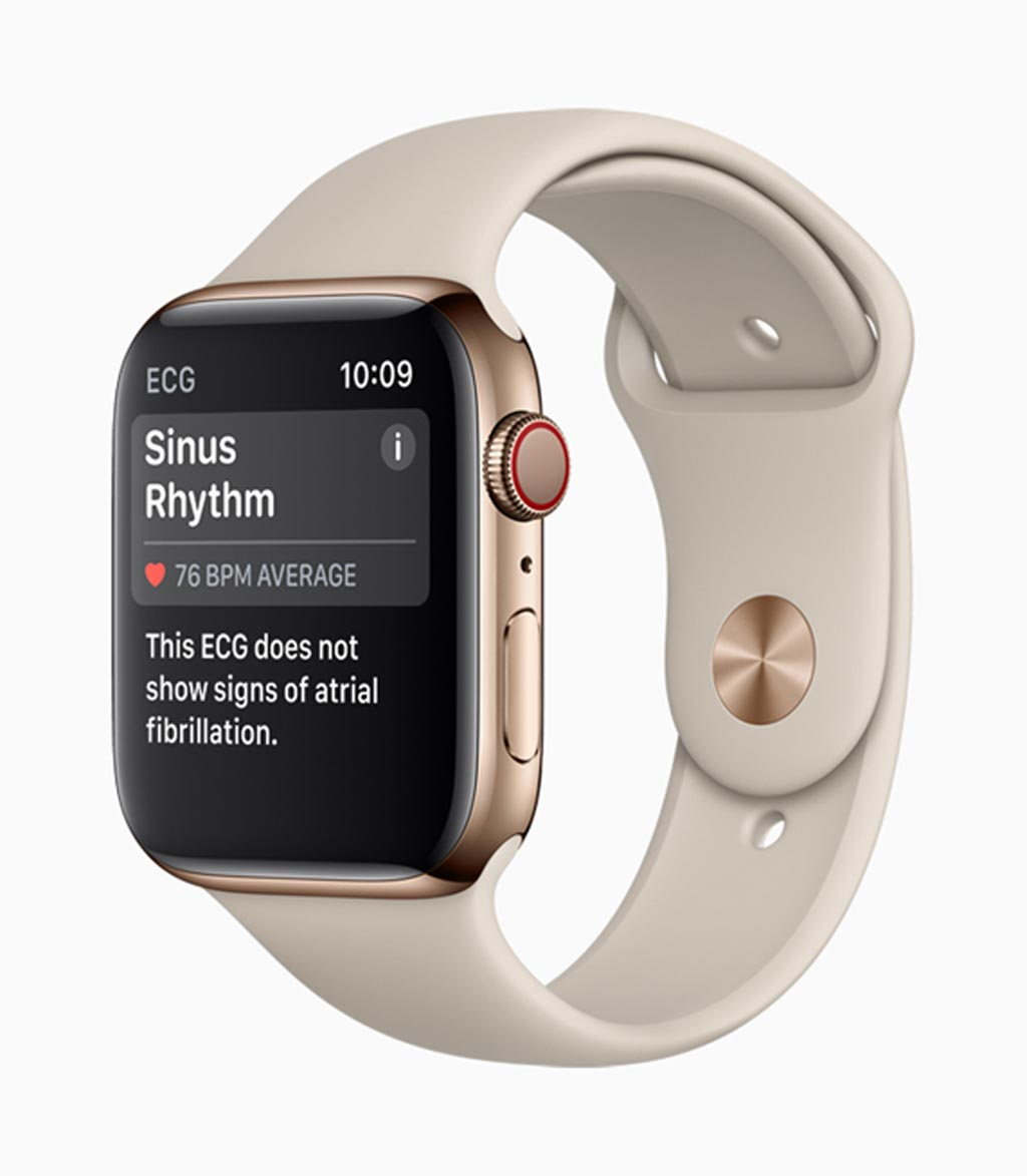 Image: The new Apple Watch can take an ECG (Photo courtesy of Apple).