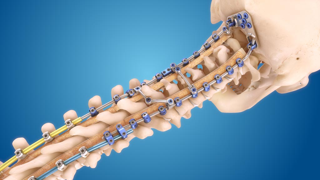 Image: The Infinity Occipitocervical-Upper Thoracic (OCT) system (Photo courtesy of Medtronic).