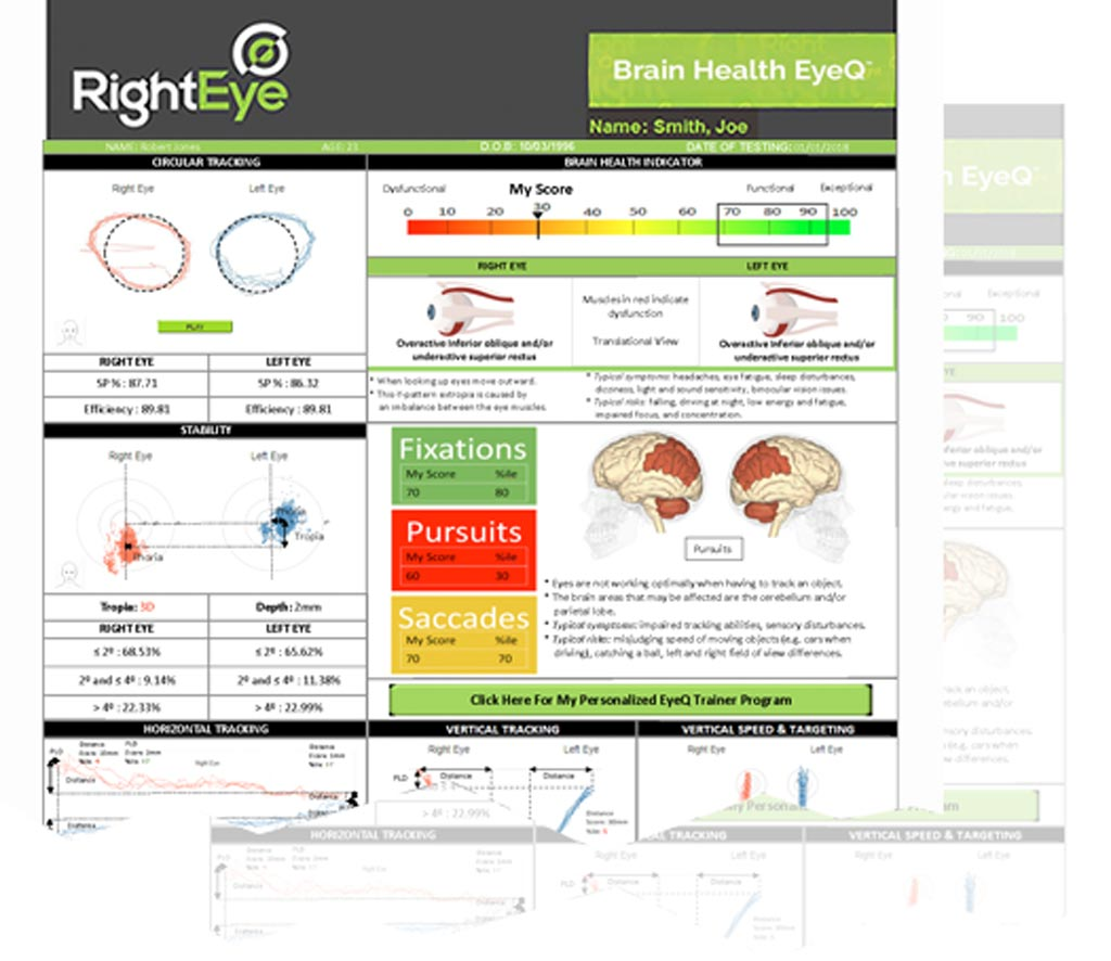 Image: Eye movement tracking can help detect neurological issues (Photo courtesy of RightEye).