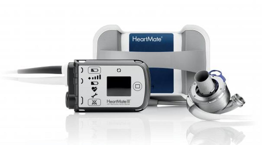Image: The MagLev HeartMate 3 LVAD system (Photo courtesy of Abbott).
