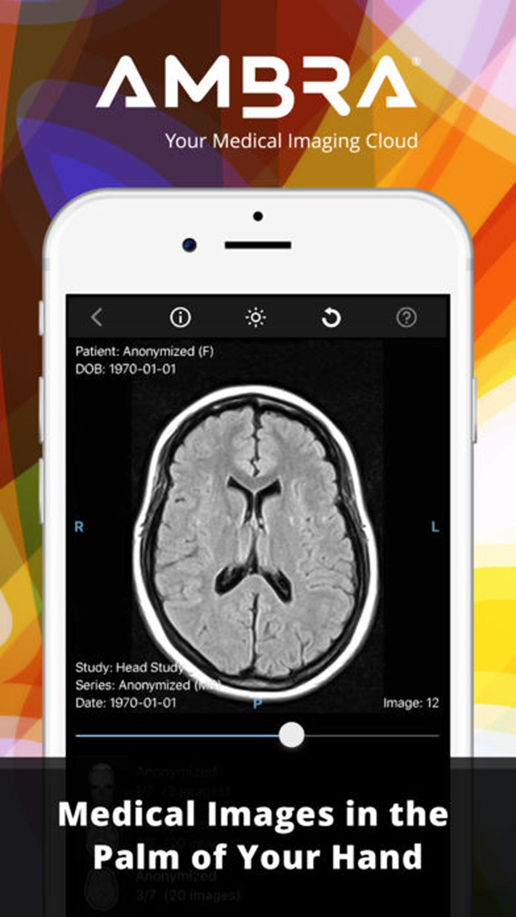 Image: A new app allows medical images to be viewed on an iPhone (Photo courtesy of Ambra Health).