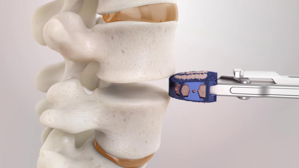 Image: The ENZA-A Titanium ALIF system (Photo courtesy of Camber Spine Technologies).