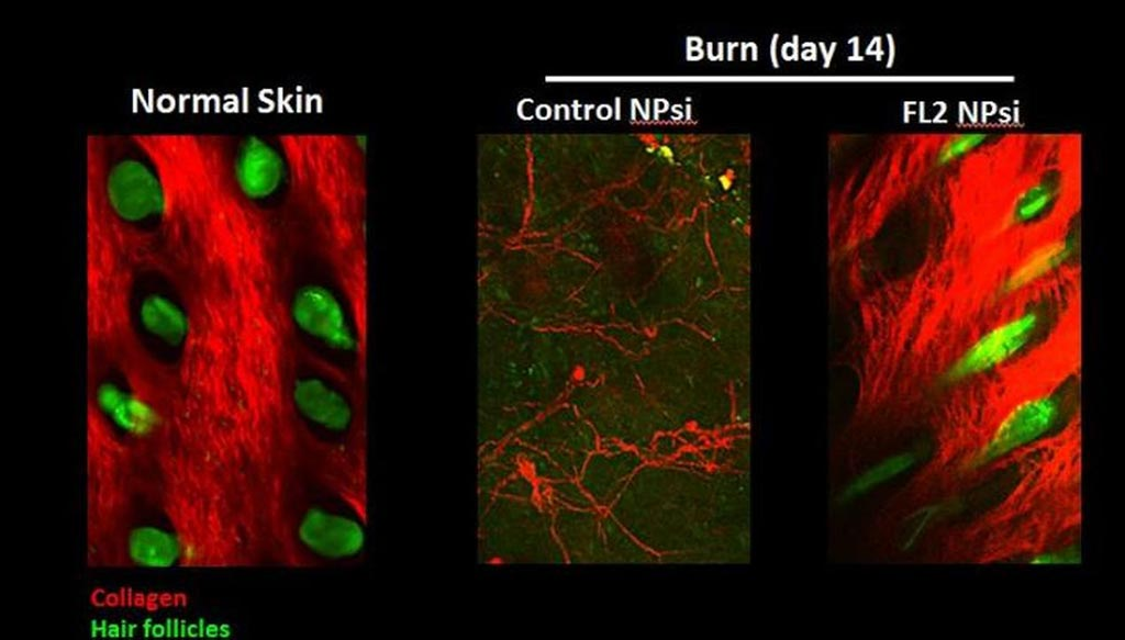 Image: Inhibiting cleaving FL2 enzymes help wounds repair better and faster (Photo courtesy of Albert Einstein College of Medicine).