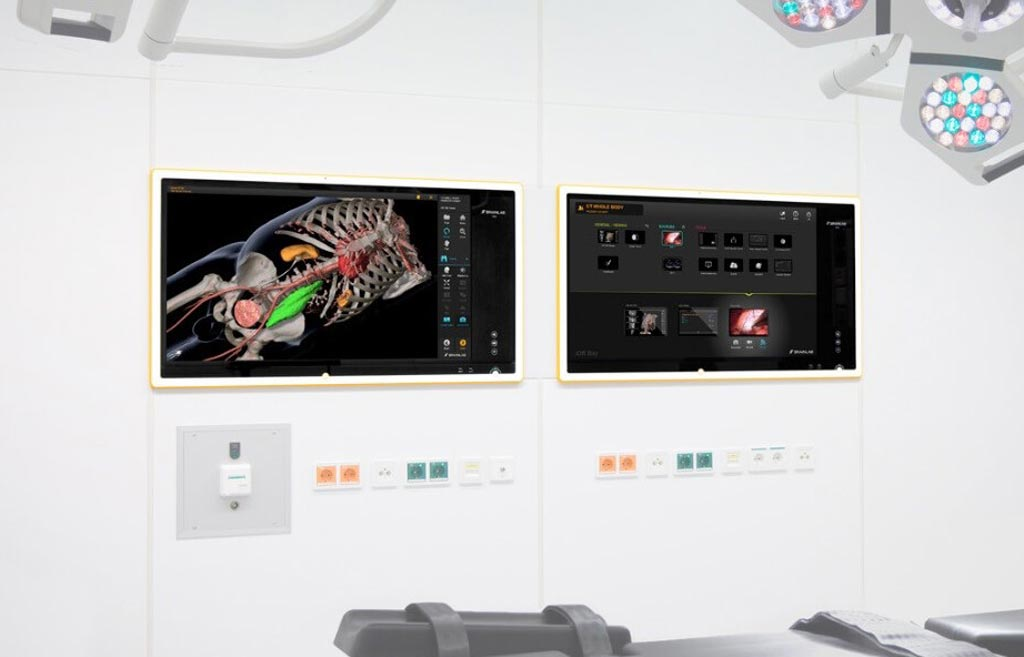 Image: The Smart Anatomy Views are designed for fast and accurate surgical planning, hospital IT integration with automatic patient data pre-fetching in the OR, communication tools and easy intra- and post-op surgical documentation (Photo courtesy of Brainlab).