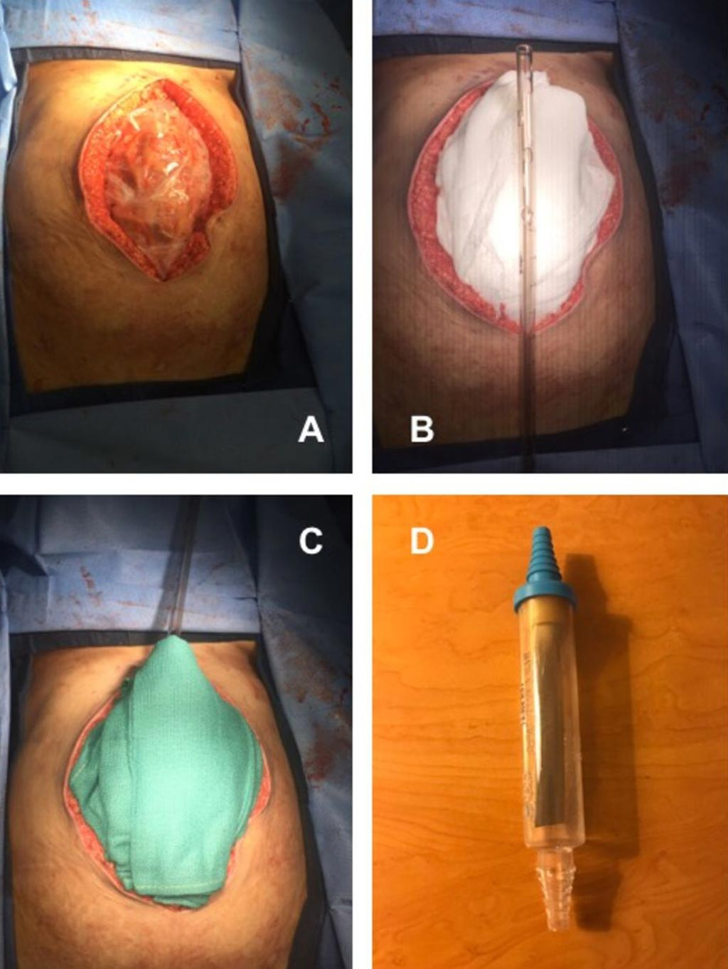 Image: Temporary abdominal closure using NPWT provides a solution for damage control in austere settings (Photo courtesy of Edwin Faulconer/ Derriford Hospital).