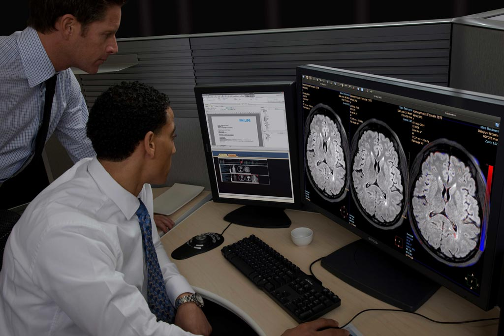 Image: The IntelliSpace Portal advanced visualization and quantification platform (Photo courtesy of Philips Healthcare).