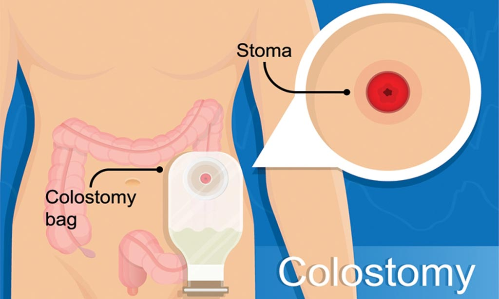 Early Colostomy Reversal May Improve Outcomes Surgical Techniques