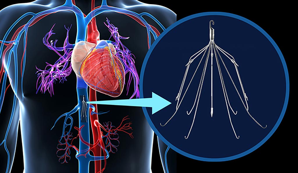 Image: An IVC filter inside the inferior vena cava (Photo courtesy of Shutterstock).