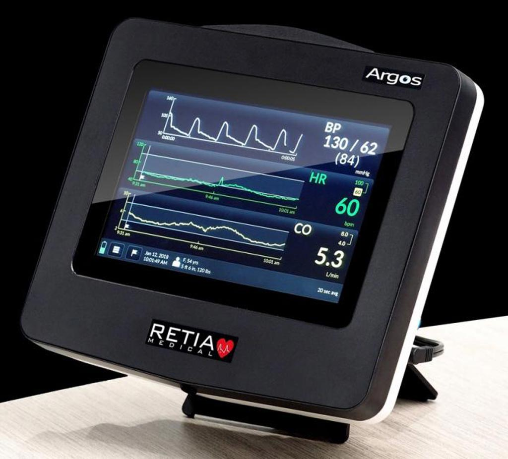 Image: A new monitor accurately measures cardiac output (Photo courtesy of Retia Medical).