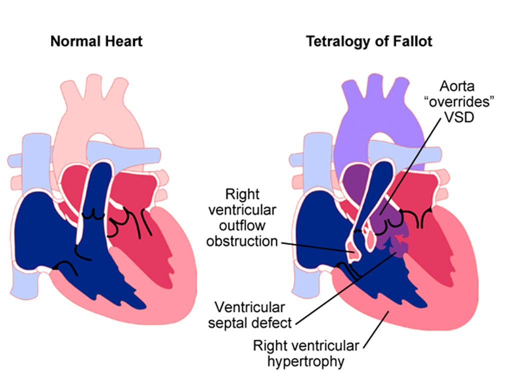 Image: A new study shows Tetralogy of Fallot (TOF) repair has good long-term results (Photo courtesy of MedMovie).