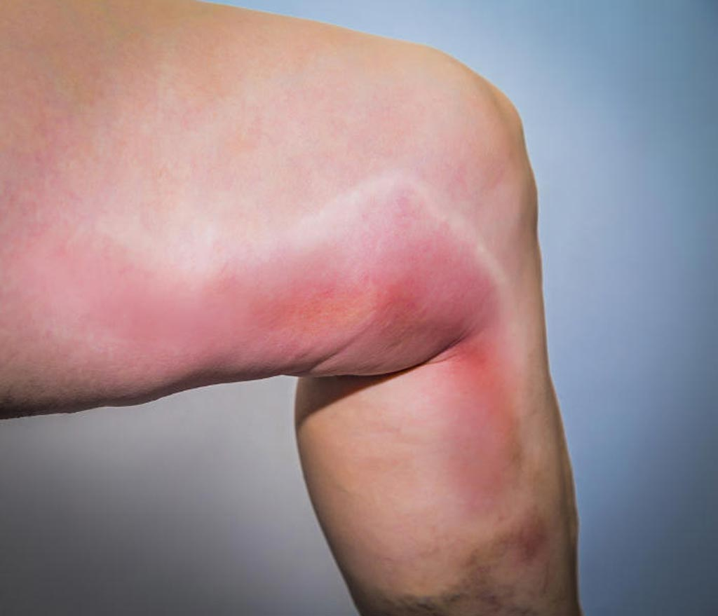Image: A new study claims peripheral IV insertion can cause phlebitis (Photo courtesy of 123rf.com).