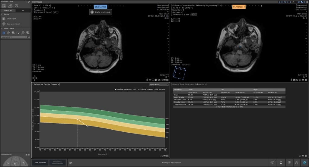 Image: The Quantib Neurodegenerative (ND) software that assists radiologists in reading MRI brain scans has received clearance from the US FDA (Photo courtesy of Quantib).