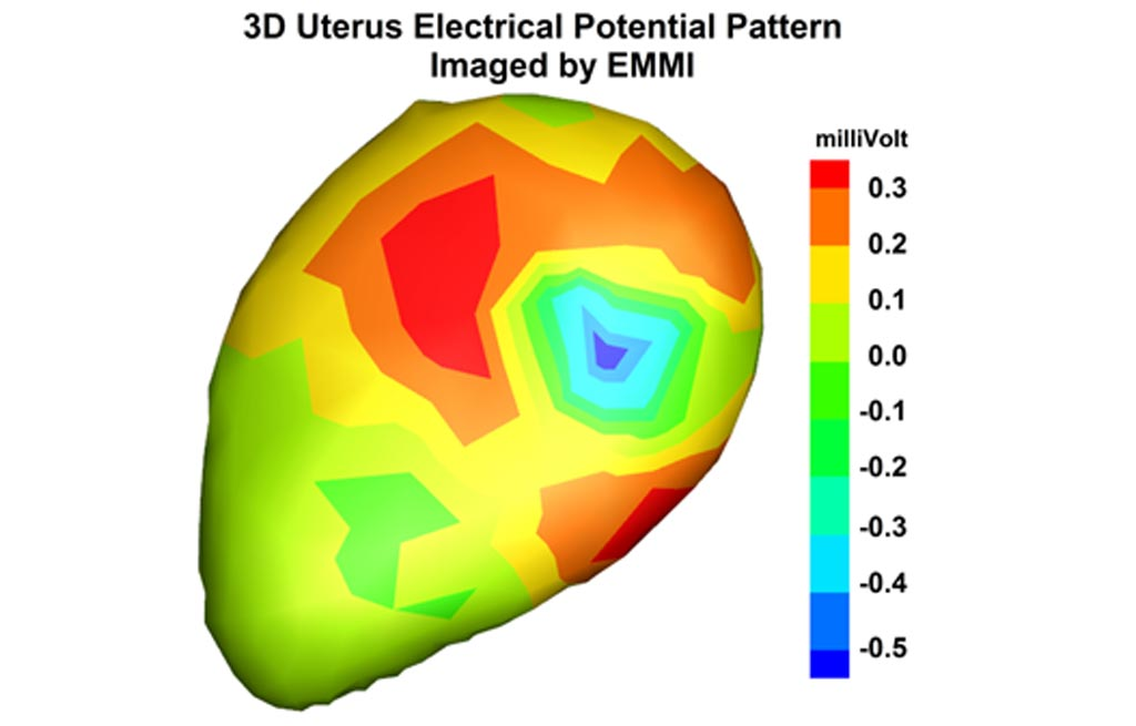 Image: EMMI mapping of uterine contractions (Photo courtesy of WUSTL).