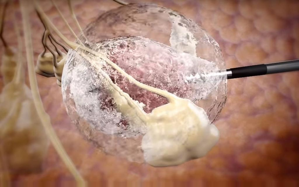 "Image: A tumor ""IceBall"" created during cryoablation treatment (Photo courtesy of IceCure Medical)."