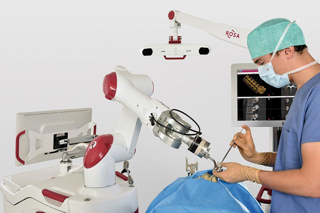 Image: The ROSA ONE Spine system in action (Photo courtesy of Zimmer Biomet).