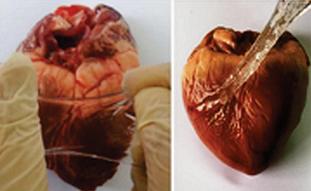 Image: The GPAP attaches to the epicardium, supporting the heart (Photo courtesy of Brown University).
