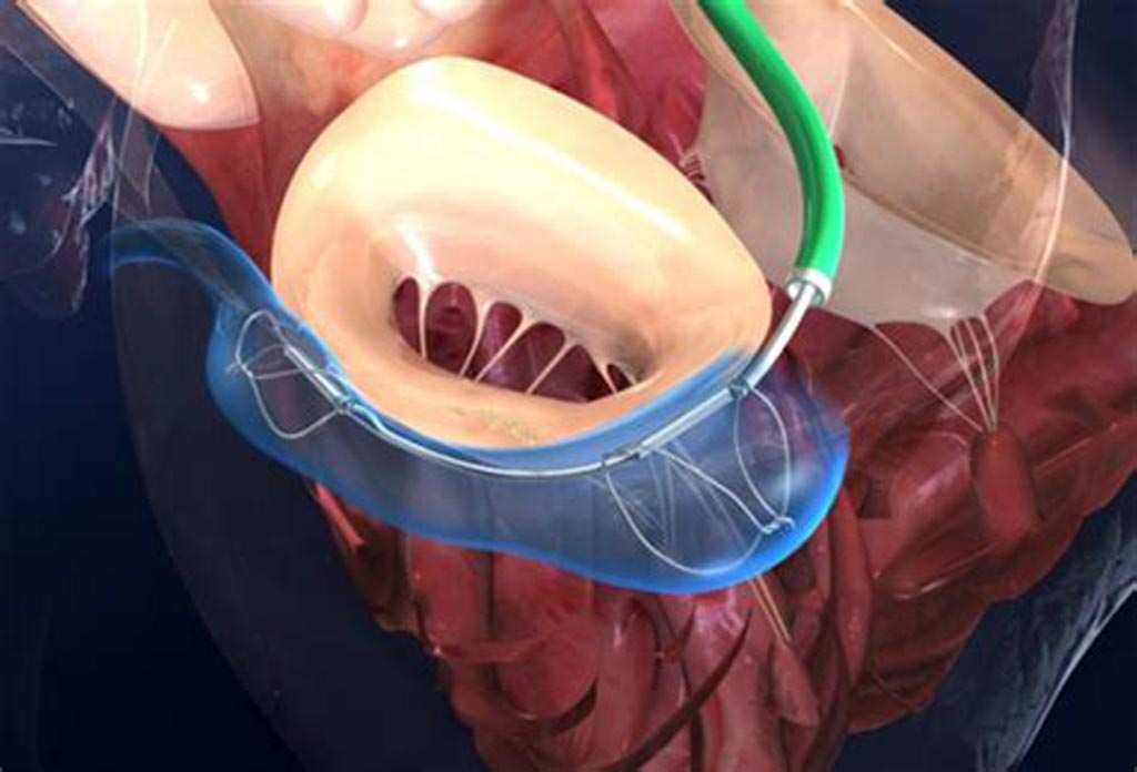 Image: The Carillon Mitral Contour System in-situ (Photo courtesy Cardiac Dimensions).