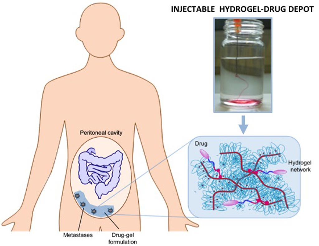 Image: An injectable 'chemo gel' could replace abdominal flushes (Photo courtesy of TU/e).