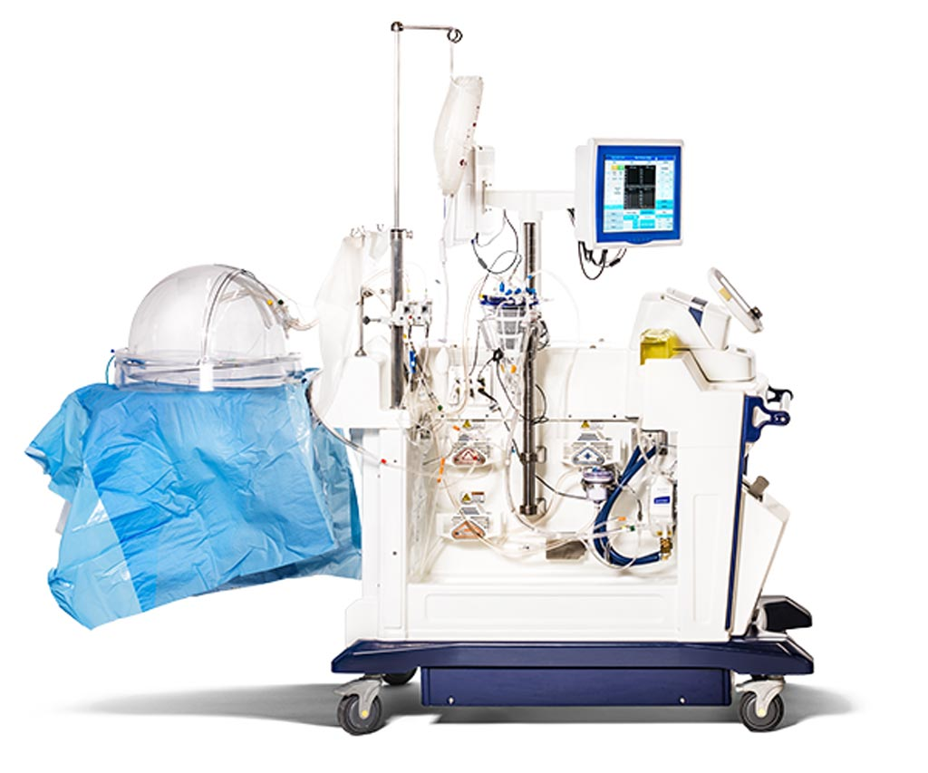 Image: The sophisticated cart is designed to maintain lungs viable for transplant (Photo courtesy of Xvivo Perfusion).