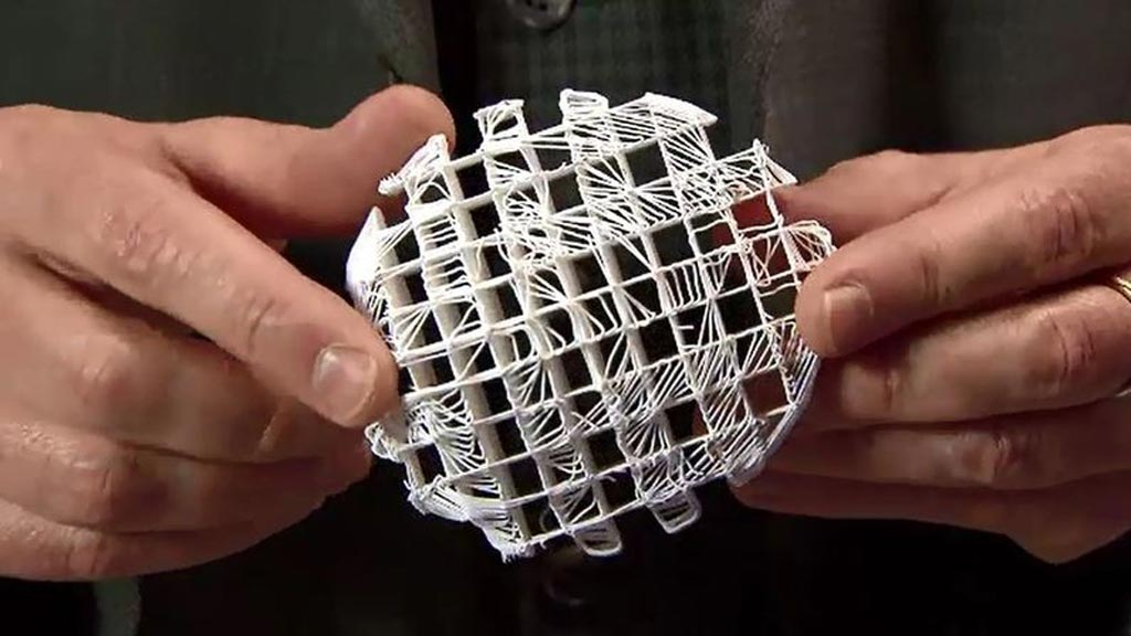 Image: Researchers assert that a 3D-printed scaffold may act as a framework and allow cancer patients to grow breast tissue (Photo courtesy of All3DP).