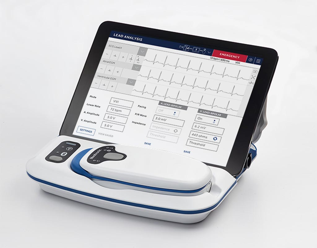 Image: The CareLink SmartSync, with base station, telemetry head and iPad controller (Photo courtesy of Medtronic).