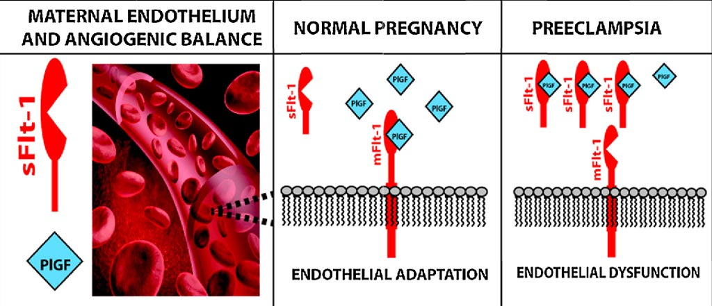 Image: The role of sFlt-1 in maternal preeclampsia (Photo courtesy of Vassilis Tsatsaris).