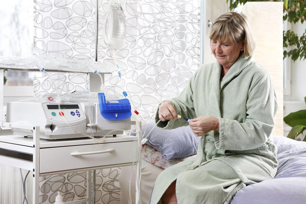 A new study claims that peritoneal dialysis reduces volume overload (Photo courtesy of iStock).