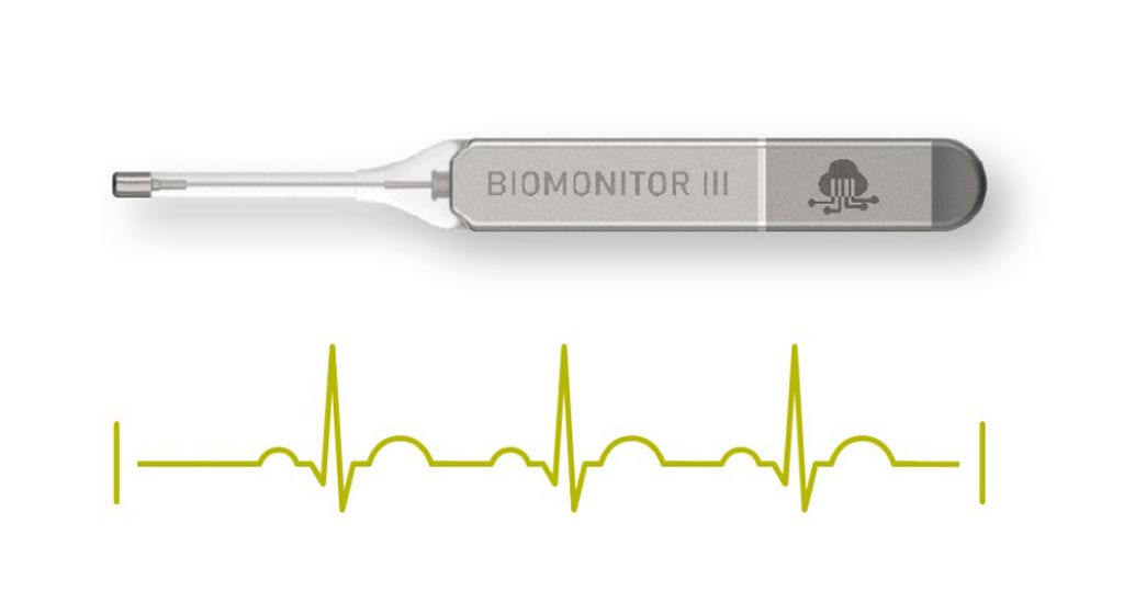 Image: The BIOMONITOR III ICM (Photo courtesy of BIOTRONIK).